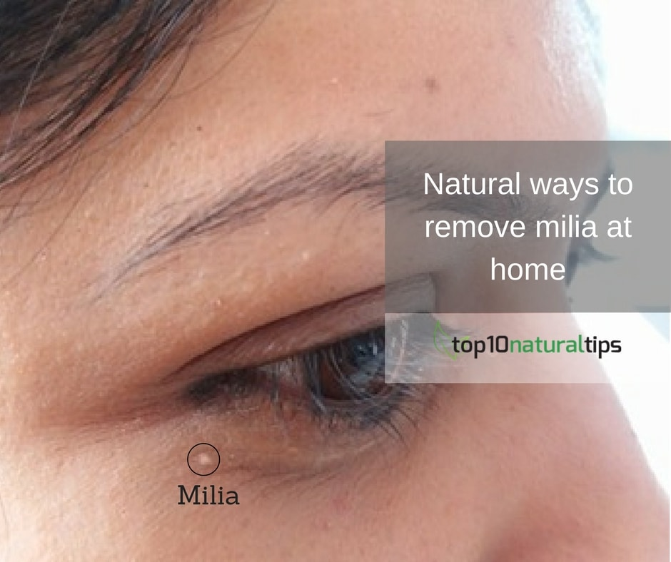 milia treatment at home