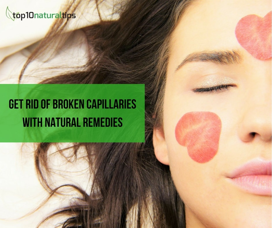 How To Cure Broken Capillaries On Face Naturally