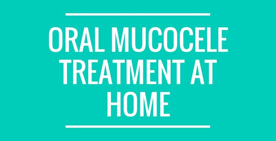 oral mucocele treatment at home