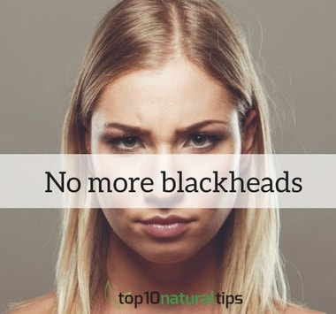 remove blackheads naturally