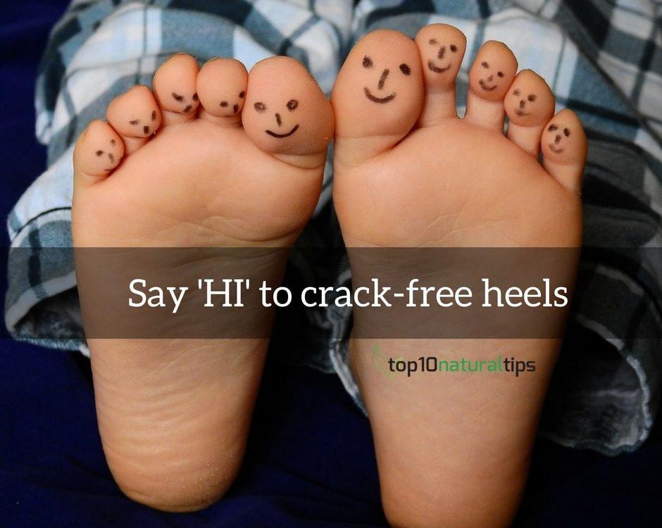 crack heel home treatment
