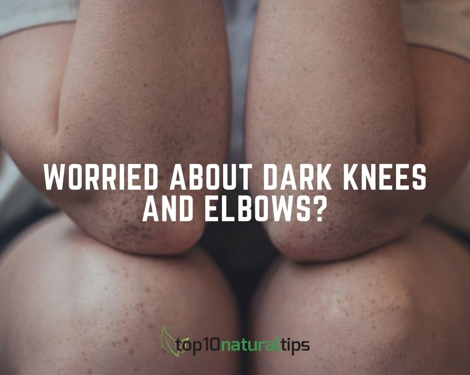 dark knees treatment