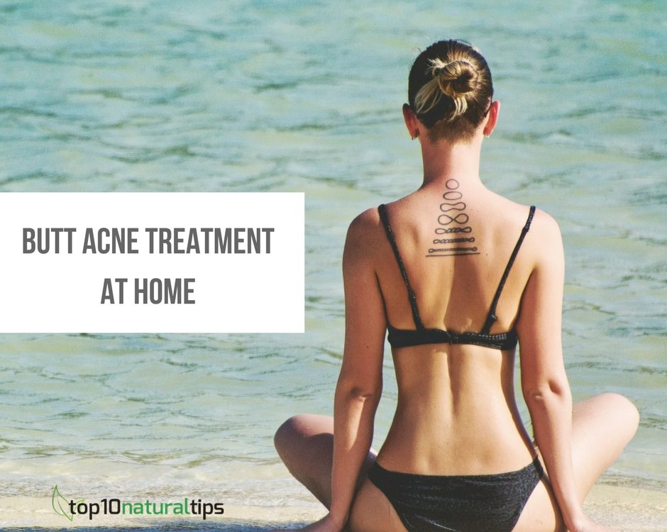 butt acne treatment at home