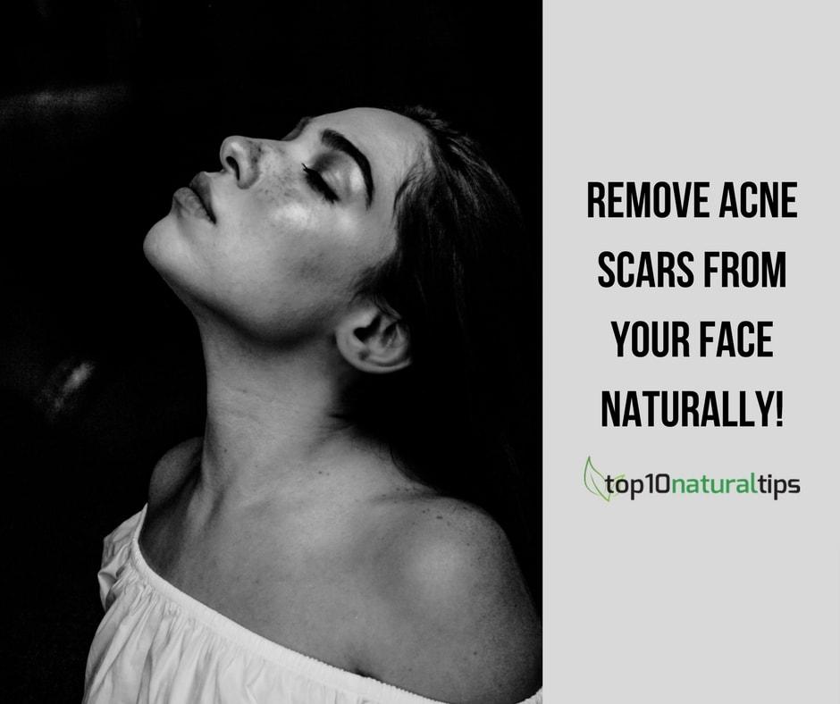 remove acne scars
