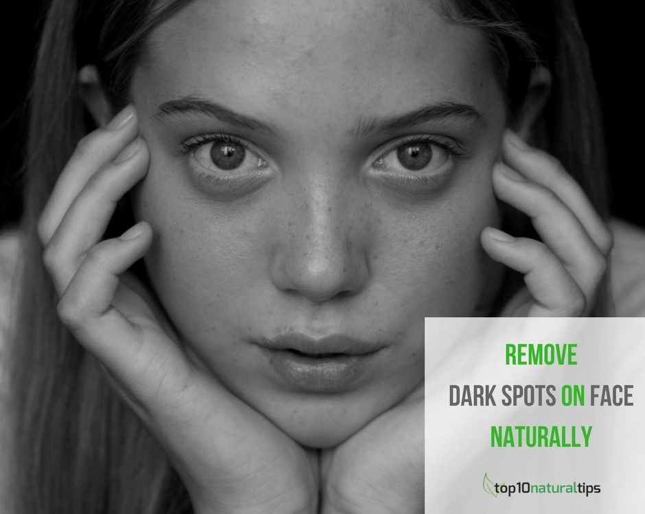 remove dark spots on face naturally