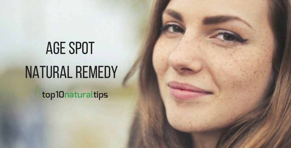 age spot natural remedy