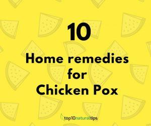 chicken pox home remedies