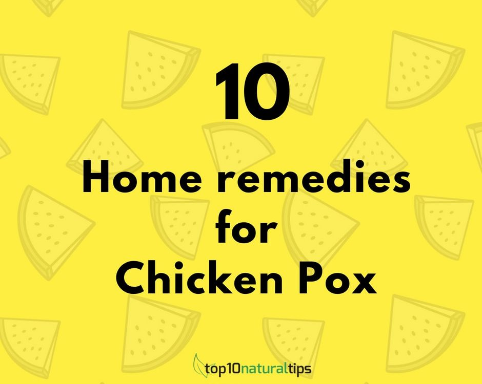 chicken pox home remedies