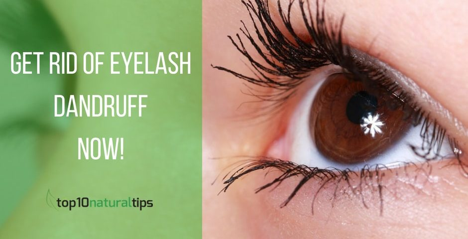 remove eyelash dandruff naturally