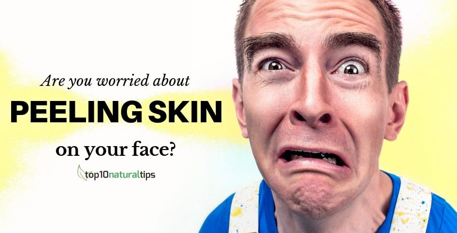 peeling skin on face