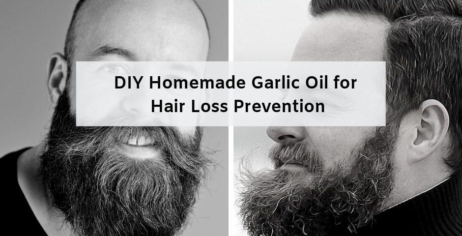 garlic oil to treat hair loss