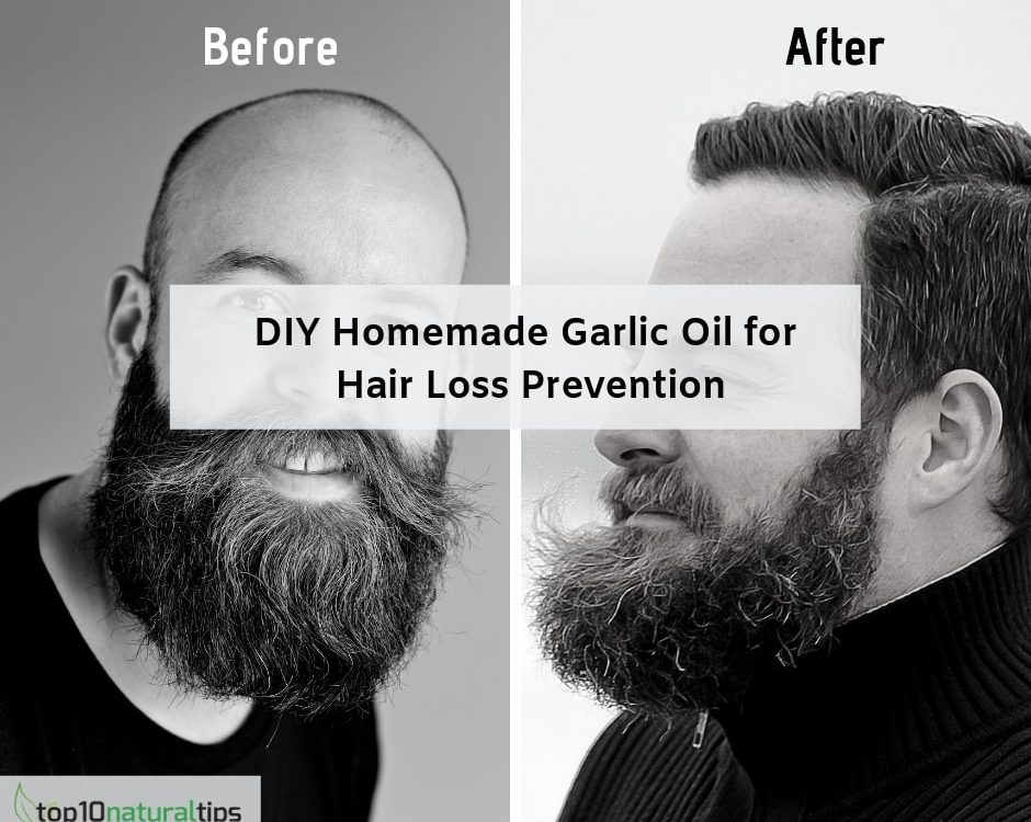 garlic oil to treat hair loss