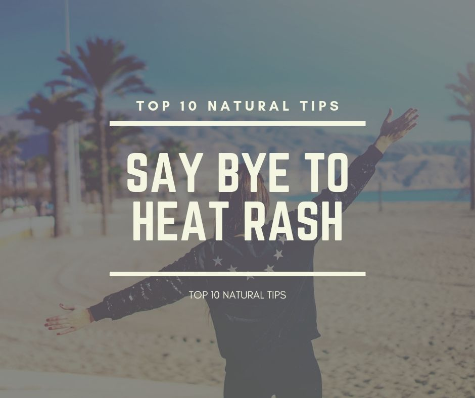 treat heat rash naturally