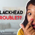 get rid of blackhead on nose