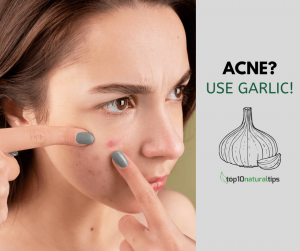 garlic for acne scars